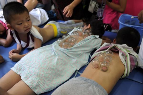 Des enfants chinois en plein de traitement de moxibustion à l'hôpital de médicine chinoise traditionnelle de Hefei, dans la province de l'Anhui à l'est de la Chine, le 18 juillet 2012.