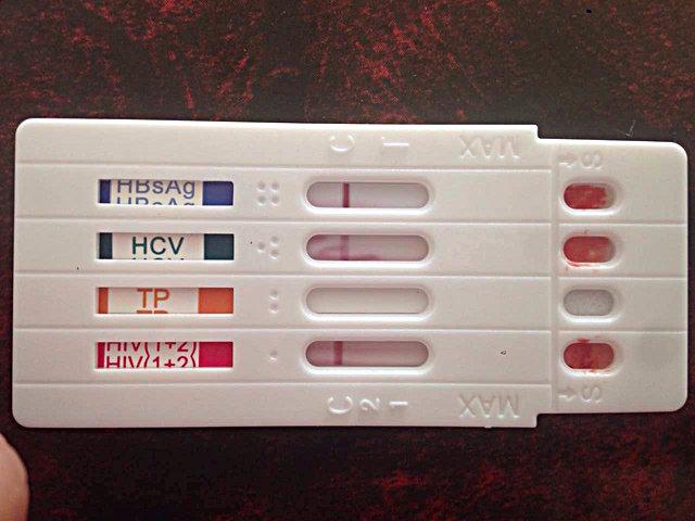 Test de dépistage multi-pathologies (hépatite B, hépatite C, syphilis et sida) proposé gratuitement aux gays de Chongqing à l'ONG créée par Wang Li.