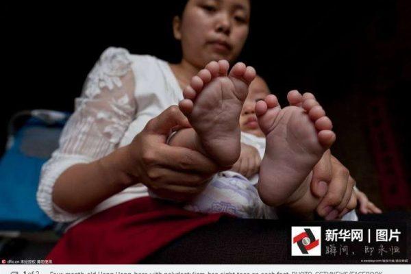 """En Chine, un bébé est né avec 31 doigts et orteils. Copie d'écran du """"Straits Times"""", le 5 mai 2016."""