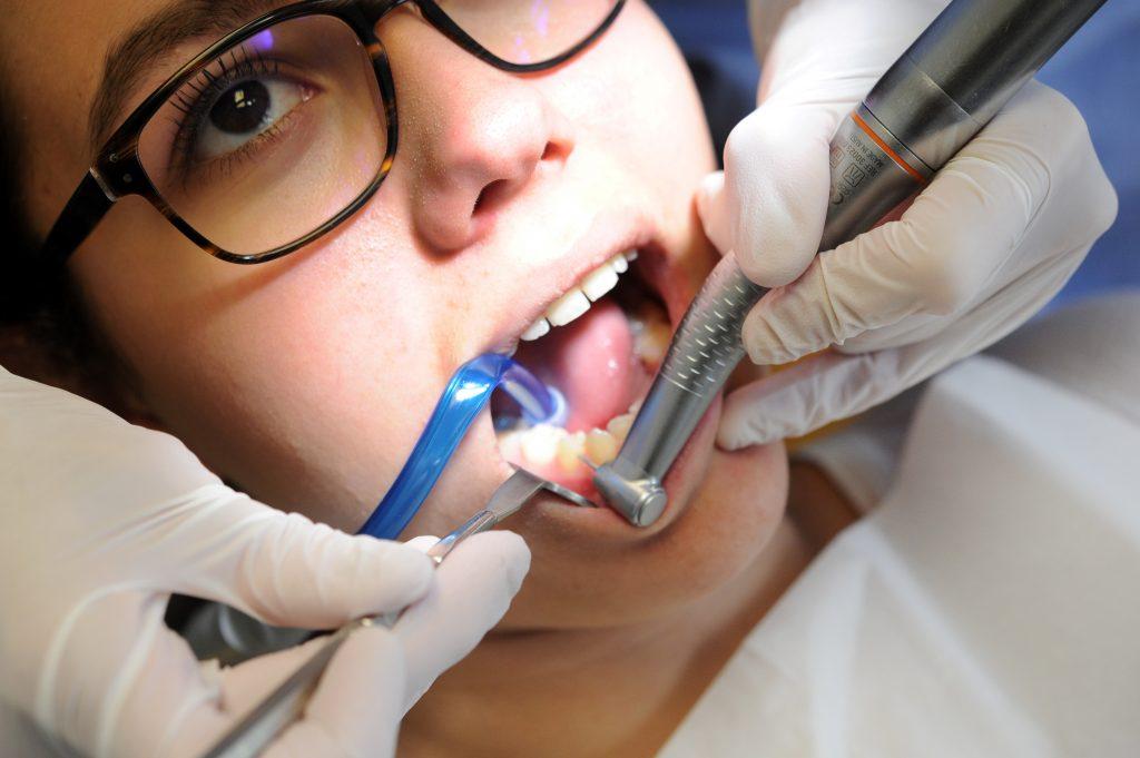 Chine : un robot dentiste fixe un implant pour la première fois au monde Image